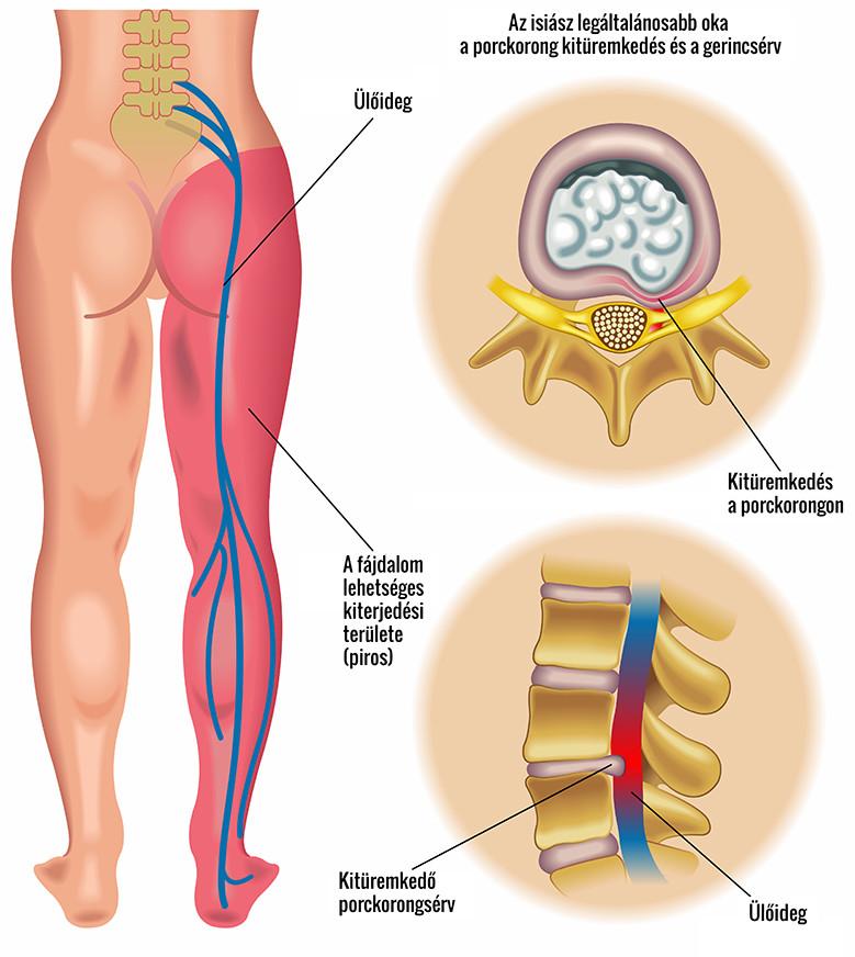 pontok a lábakon az erekcióhoz