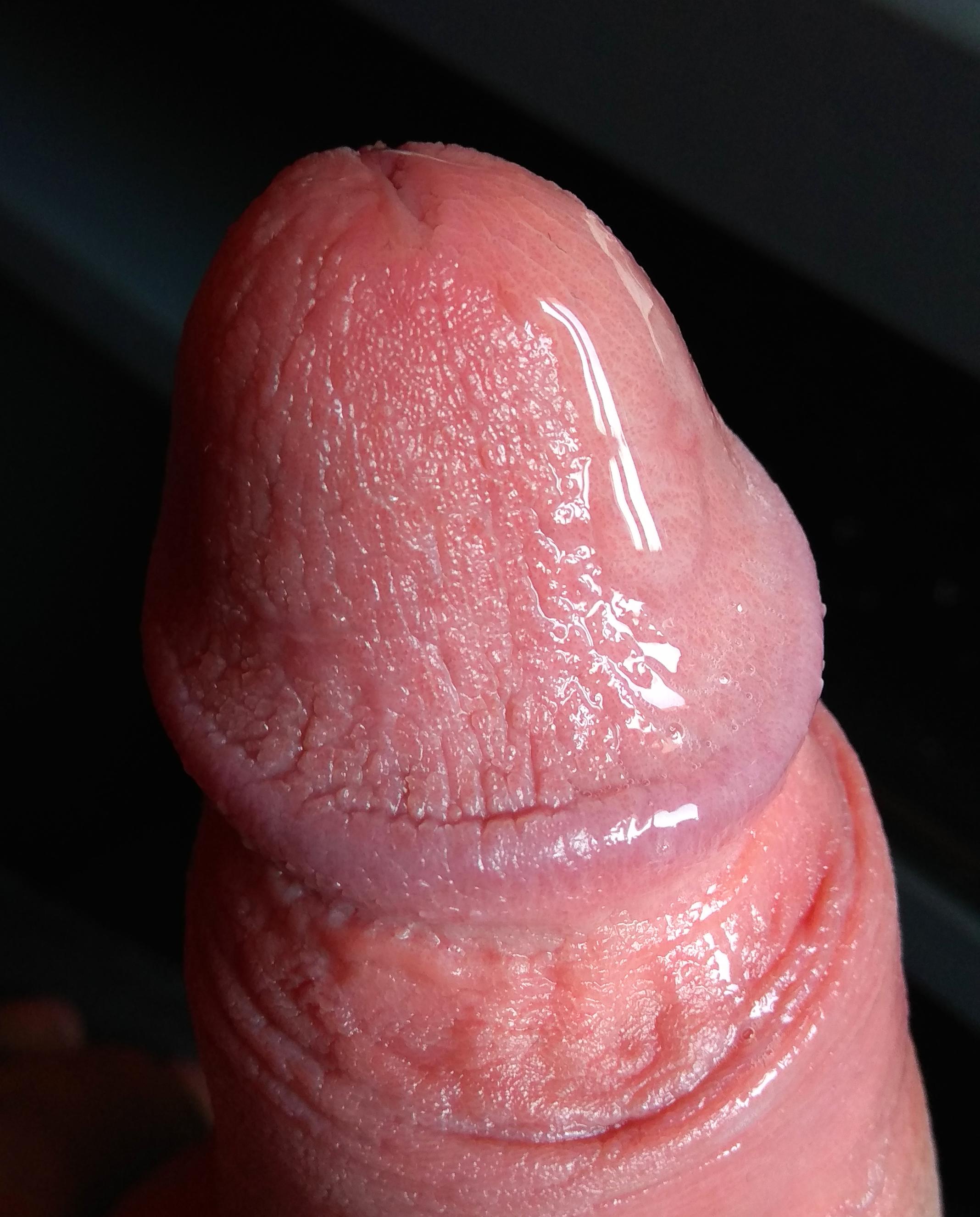 mit csinálhat pénisz hüvely)