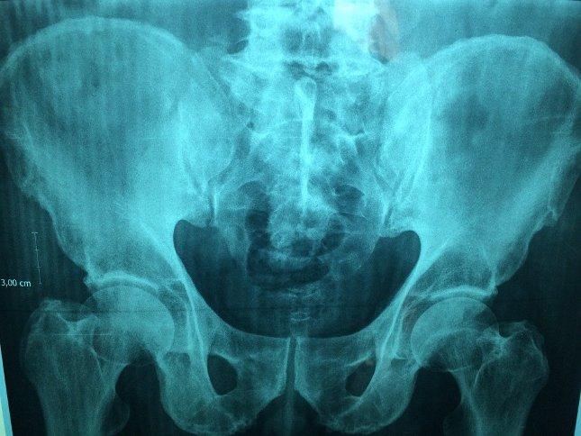 amit a pénisz helyettesíthet műtét prosztatektómia és erekció