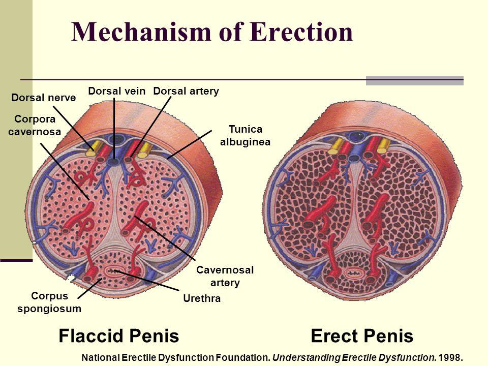 erekció be