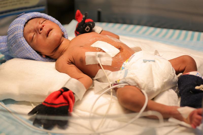 Két pénisszel született egy csecsemő Romániában