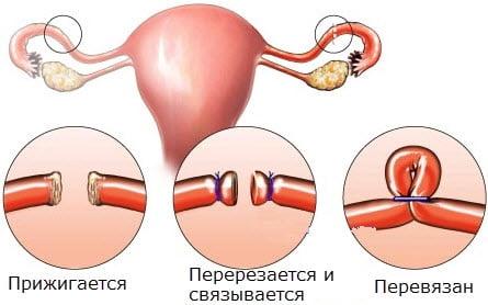 beillesztve a péniszbe)