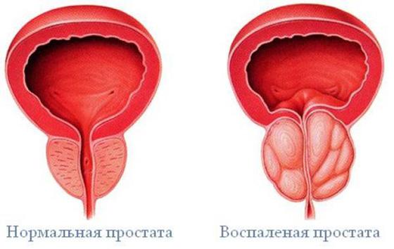 Erekció elvesztése prosztatagyulladás miatt