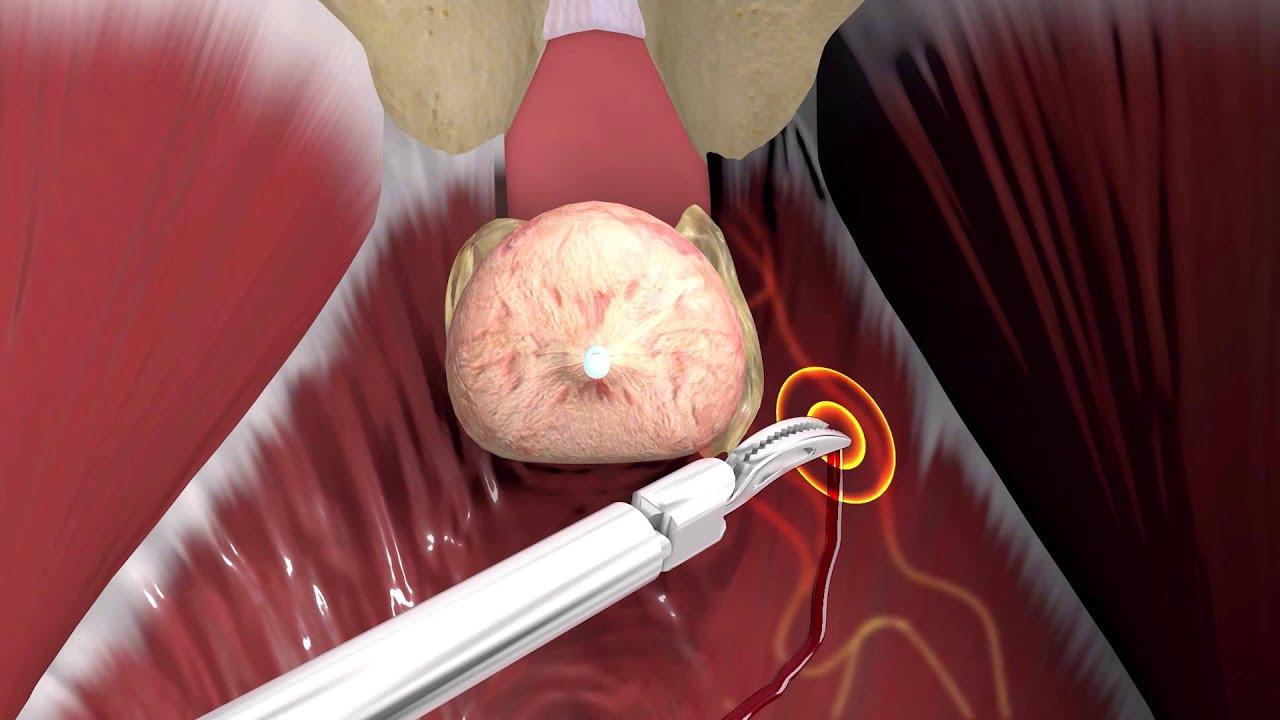 prosztatagyulladás, amely súlyosbítja az erekciót
