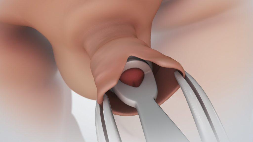 a pénisz kevésbé érzékeny