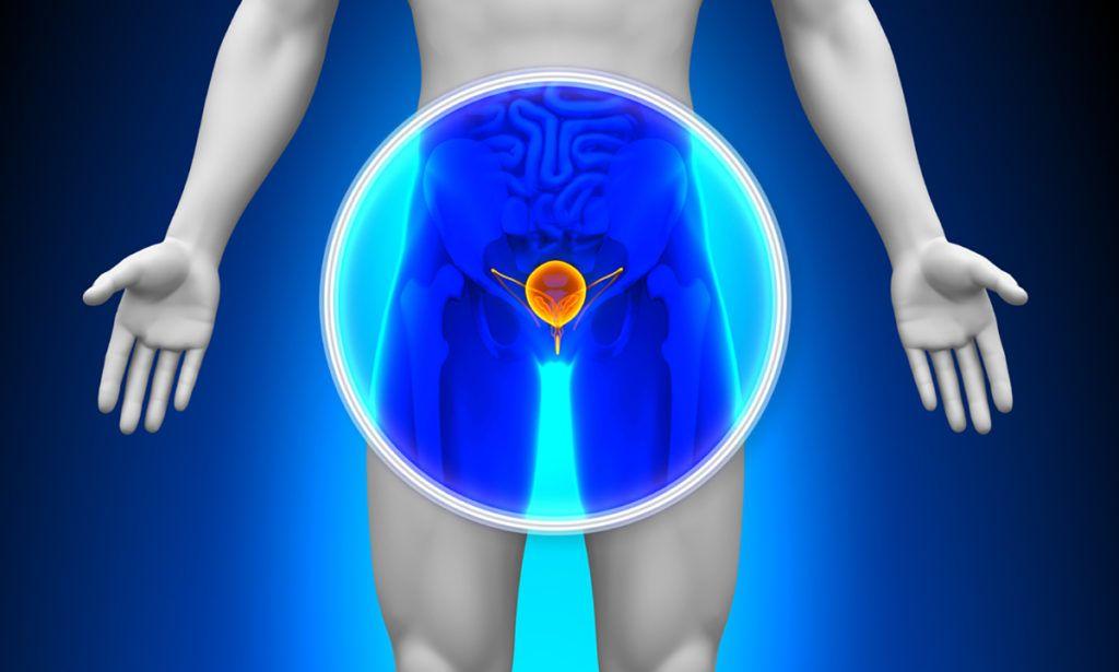 krónikus prosztatagyulladás gyenge erekció)