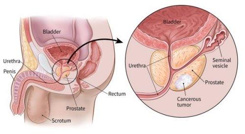 hogyan befolyásolja a prosztata az erekciót)