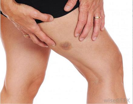 Zúzódás kezelése – zúzódásra, véraláfutásra krém, zúzódásra gyógynövény krém