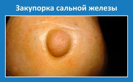 Hímvessző, pénisz bőrbetegségei-okok-kivizsgálás
