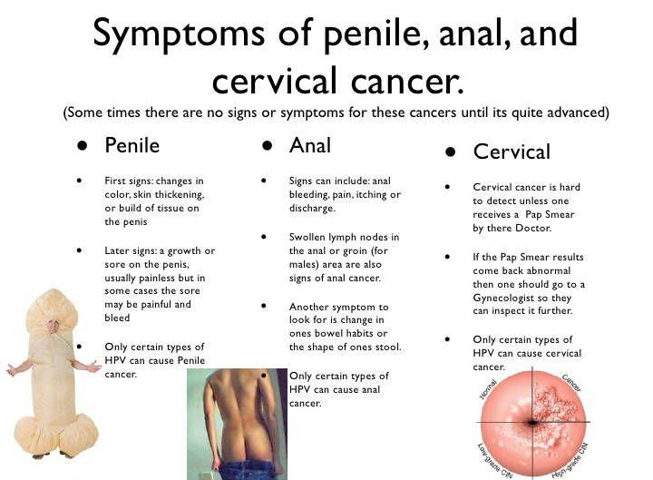 Valójában így néz ki a pénisz | Szexsuli