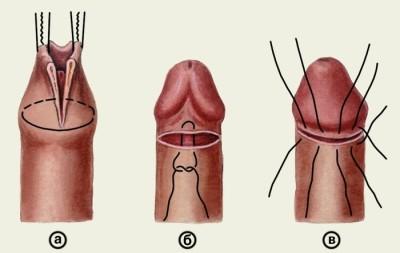 fotó phimosis erekcióval