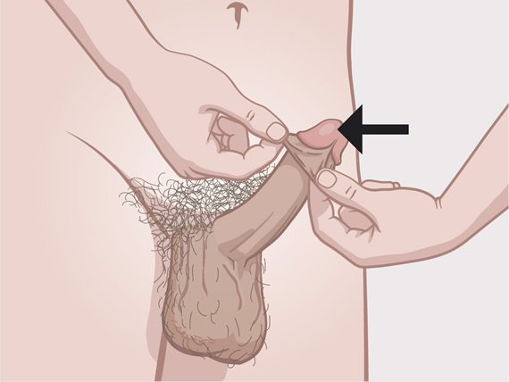 Vitaminok a péniszhez: mi szükséges a pénisz növekedéséhez és bővítéséhez?