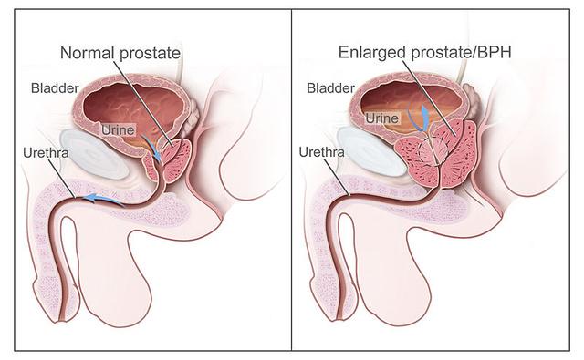 prosztatagyulladás esetén merevedés van, de nincs magömlés