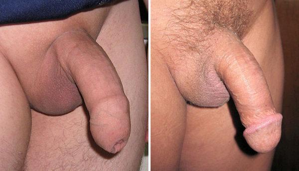 megbeszélések a péniszről