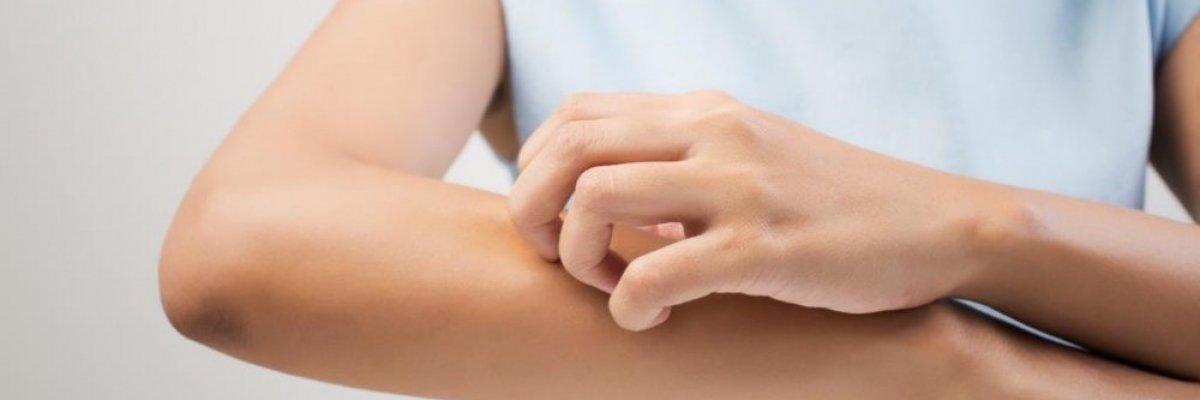 Száraz, hámló bőr - Mik lehetnek a kiváltó okok?