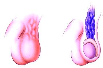 Potenciazavar 24 évesen :: Dr. Koncz Pál - InforMed Orvosi és Életmód portál :: merevedési zavar