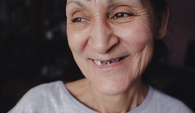 merevedés és rossz fogak