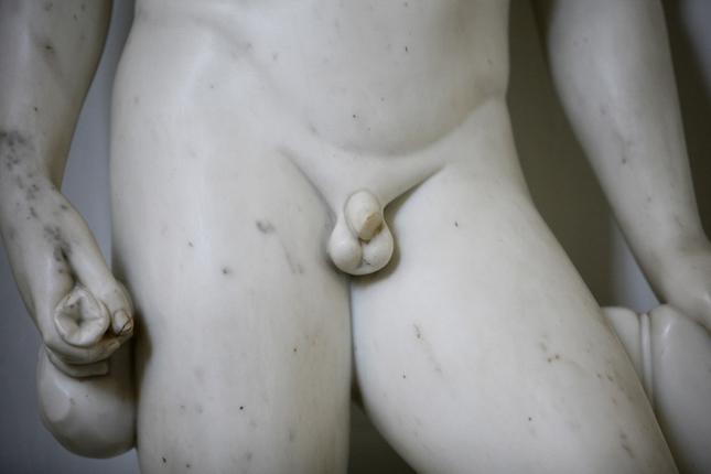 egy péniszes férfi az orvosnál)
