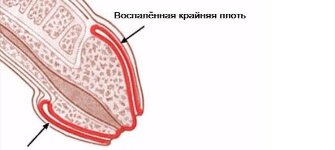 a betegség megnyilvánulása a péniszen)