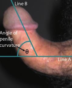 a pénisz megvastagszik, ha hogyan lehet orvosilag megnövelni a péniszet