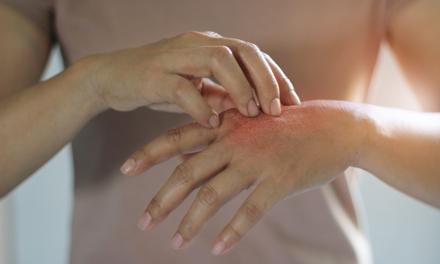 pikkelysömör a makkon - Természetes krém dermatitisz, ekcéma és psoriasis kezelésére