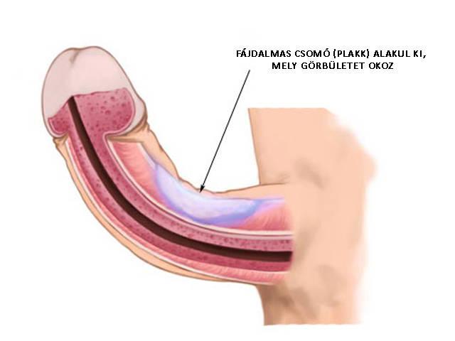 a pénisz erekcióval fáj a tövénél