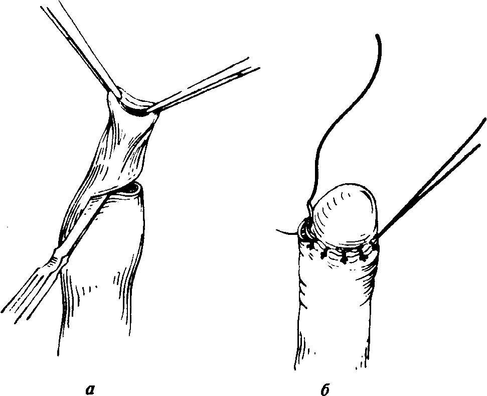 A pénisz megrepedése: a kezelés okai és módjai - Moles September