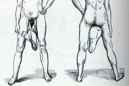 férfiak két pénisz nem kemény pénisz