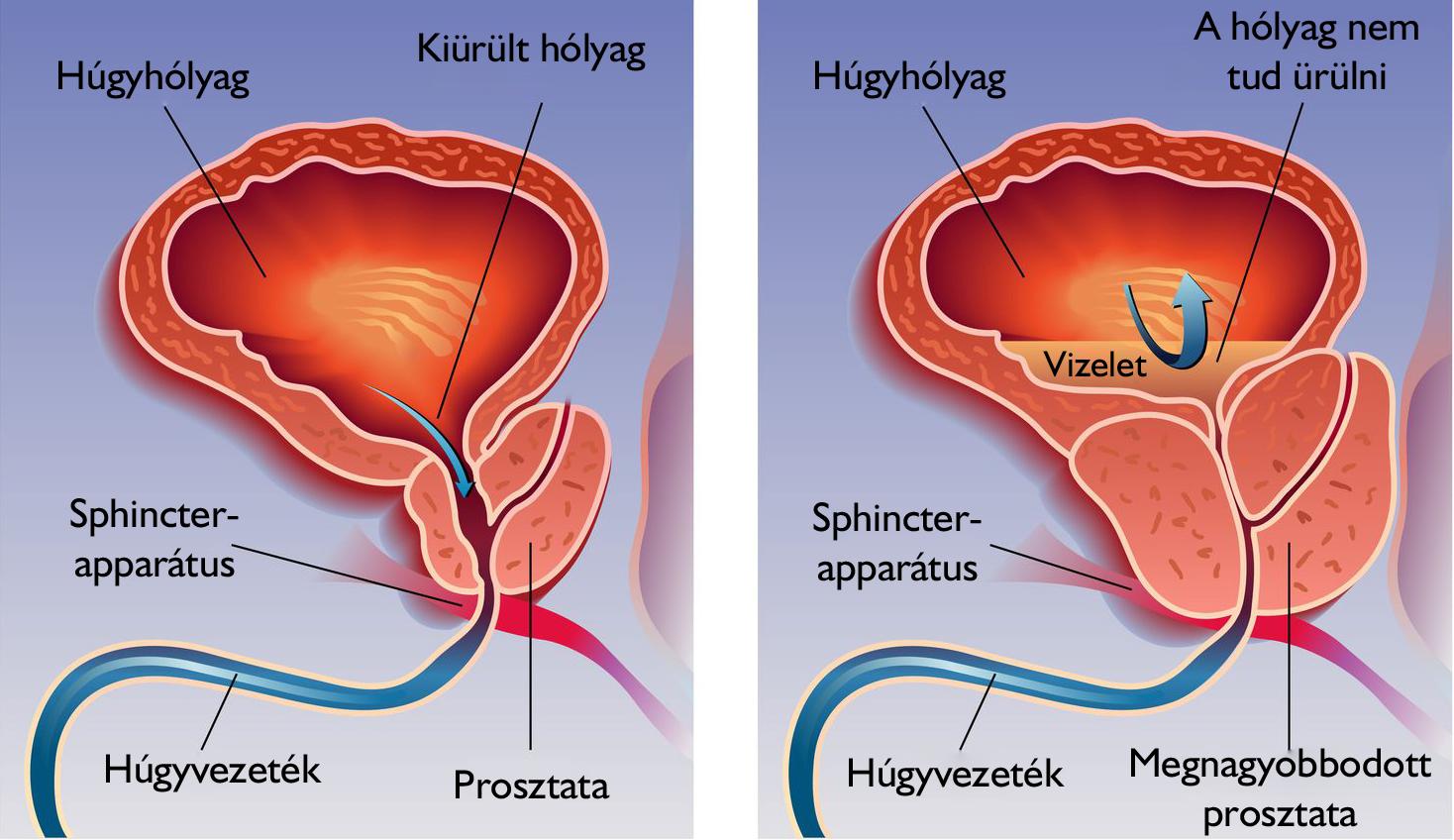 prosztatagyulladás során nincs erekció egy merevedés önmagában helyreállhat