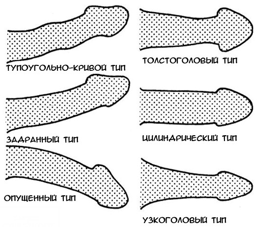 szokatlan alakú péniszek)