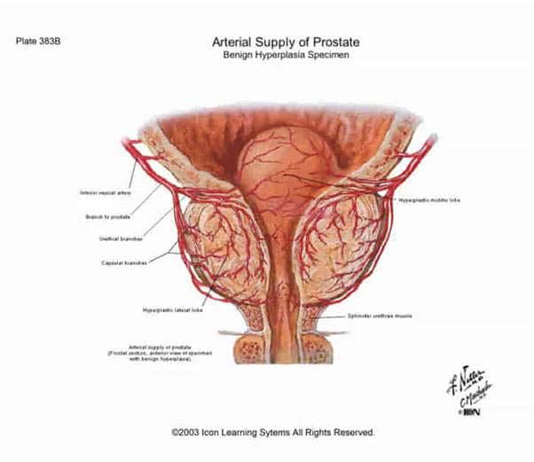 az erekció helyreállítására prosztatagyulladással