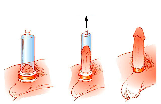 Íme, a hét leggyakoribb péniszforma (18+)