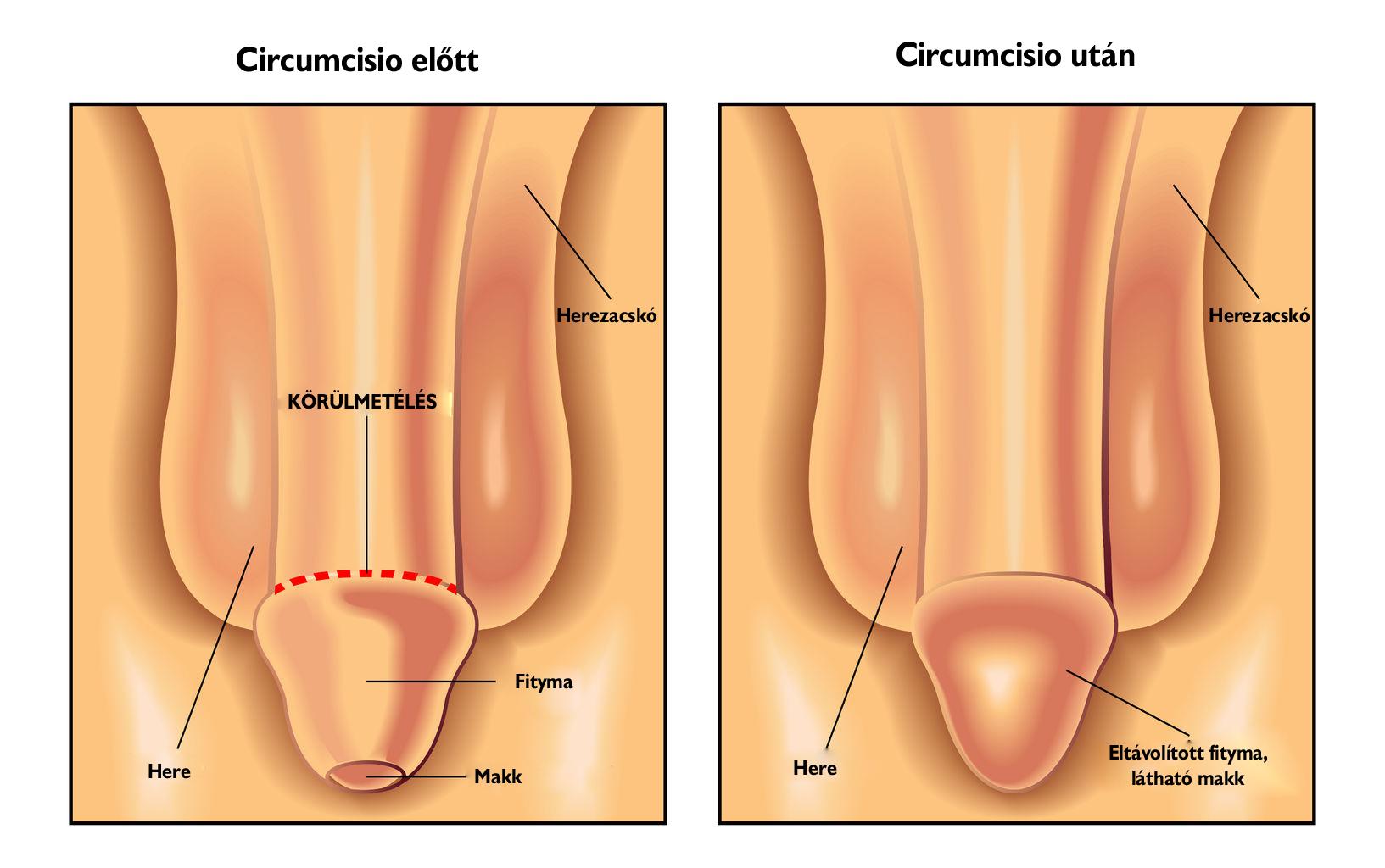 kezelés pénisz műtét után