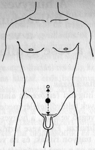 petyhüdt pénisz szindróma)