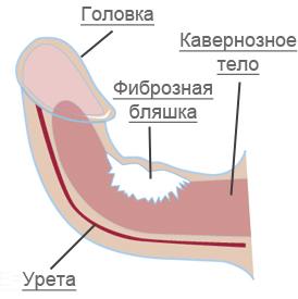 pentoxifillin-erekció