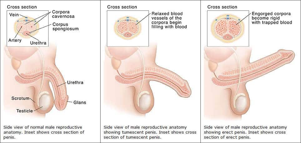 merevedési zavar a sclerosis multiplexben
