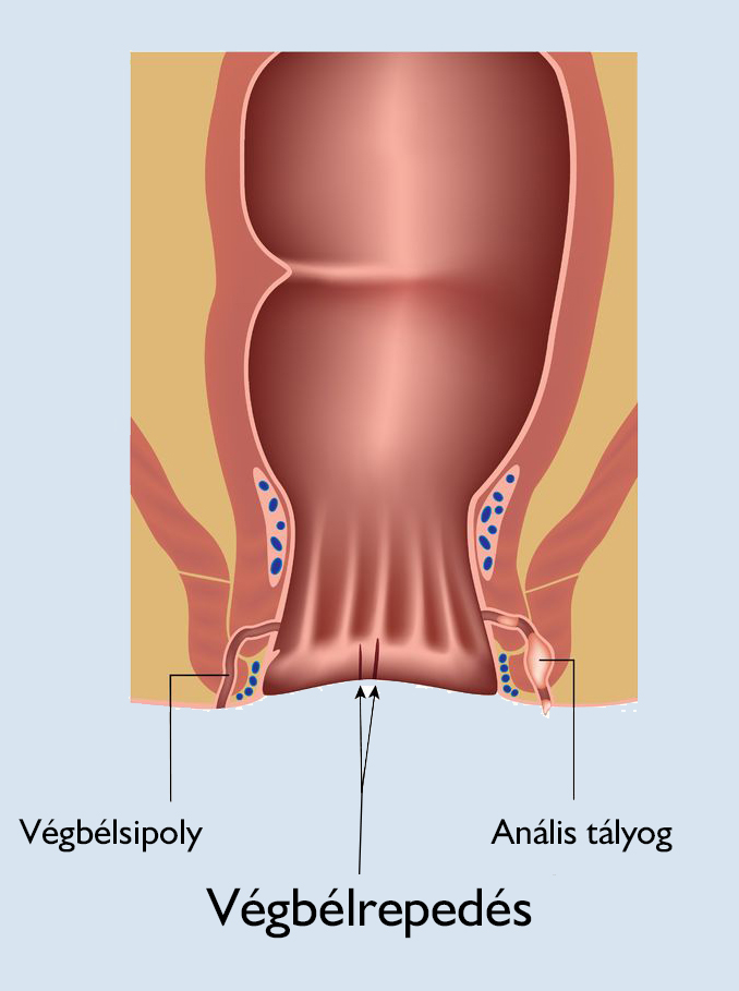 merevedési fájdalommal a végbélnyílásban hogyan kell díszíteni a pénisz