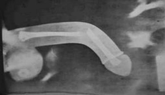 a pénisz lágy szövete