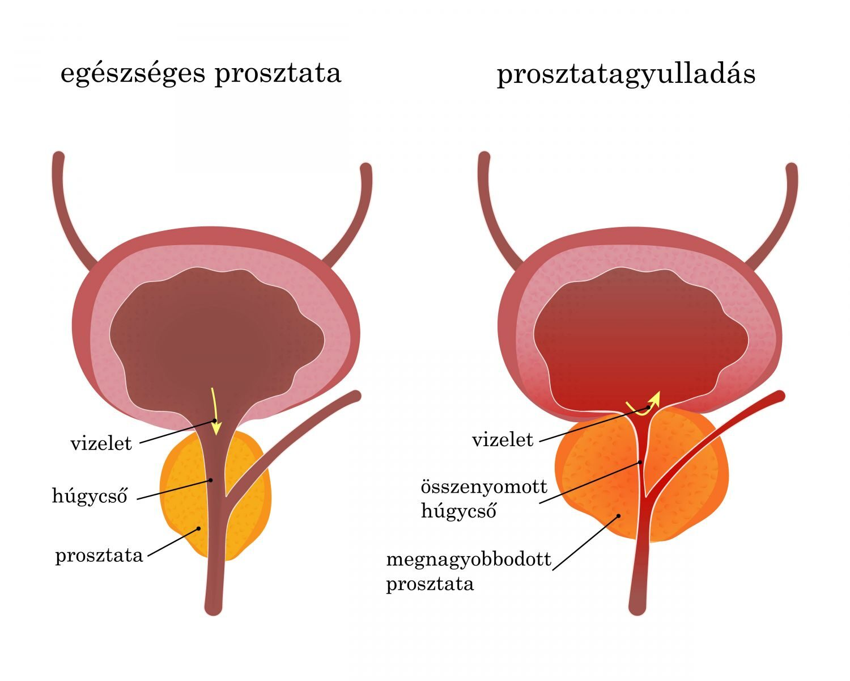 éjszakai merevedés krónikus prosztatagyulladással a pénisz alsó része