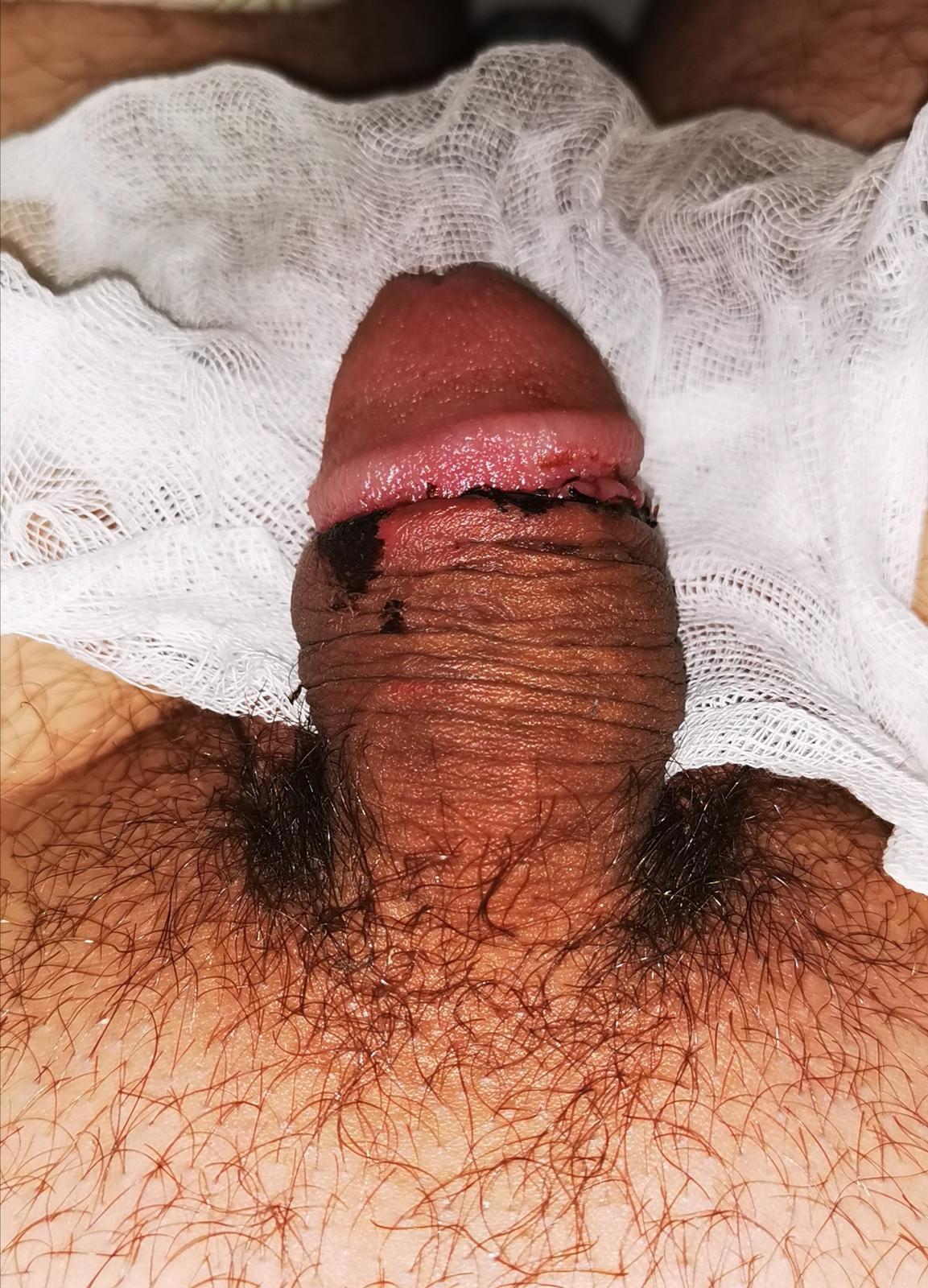nedves fasz az erekció során