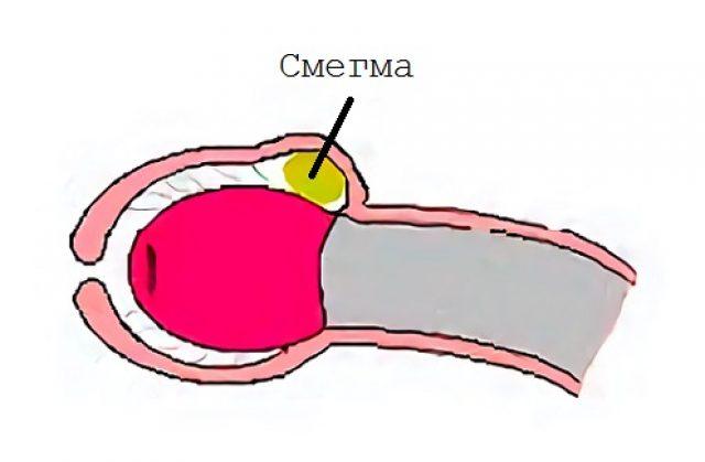 triderm és pénisz)