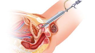 Erekció prosztata adenoma műtét után