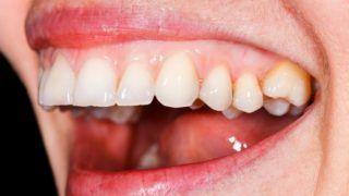 merevedés és rossz fogak jó erekciós gyakorlatok