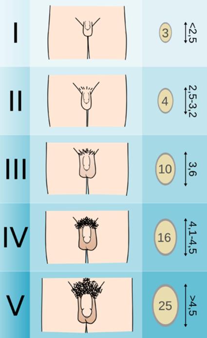 prosztata kezelés és erekció milyen méretű a hímvessző
