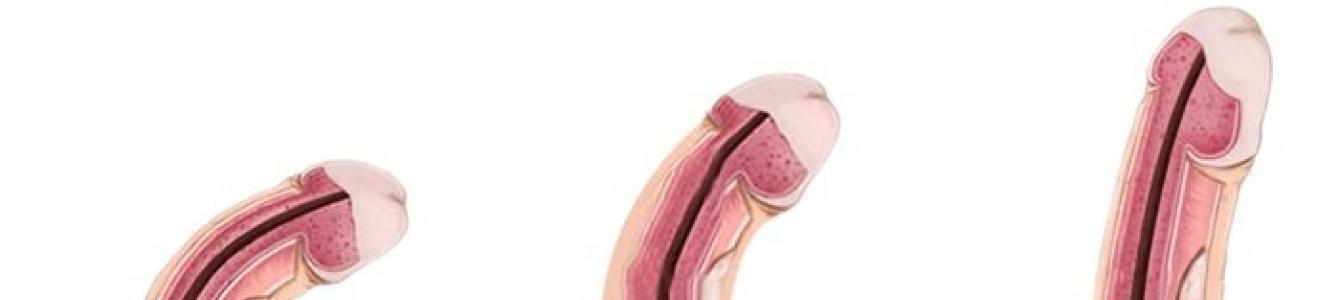 az embernek görbült pénisze van erekció során