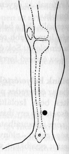 akupunktúrás pénisz