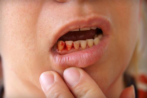 merevedés és rossz fogak melyik orvos forduljon erekciós problémákhoz