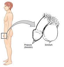 pénisz hypoplasia)